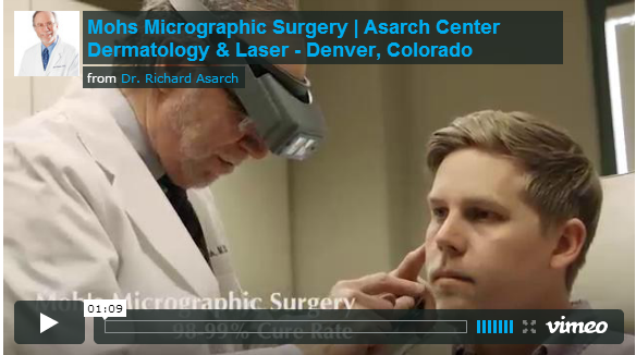 Dermatologist Denver Dr. Asarch Performs Mohs