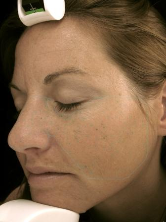 VISIA Skin Analysis Before and After DERMAspaRx Before