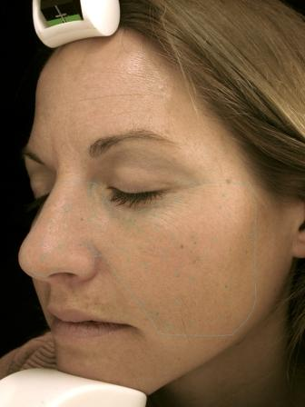 VISIA Skin Analysis Before and After DERMAspaRx After