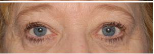 Laser Blepharoplasty After