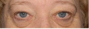 Laser Blepharoplasty Before