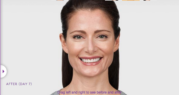 Botox After