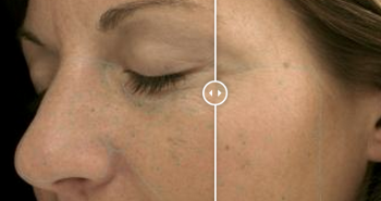 VISIA Skin Analysis Before and After DERMAspaRx