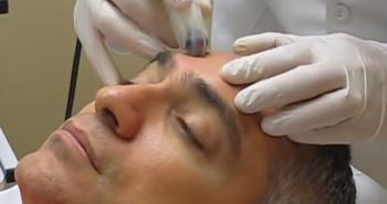 DermaFrac Microchanneling