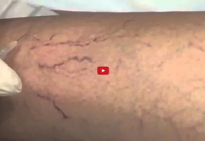 Spider Vein Sclerotherapy