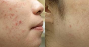 Acne Lift Treatment