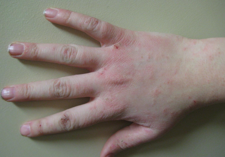 Чем и как лечить дерматит на руках
