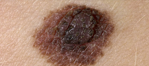 Atypical Mole-Dysplastic Nevus