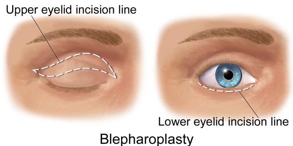 Laser Blepharoplasty