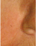 Intense Pulsed Light After