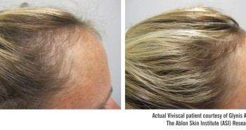 Viviscal Professional Before and After