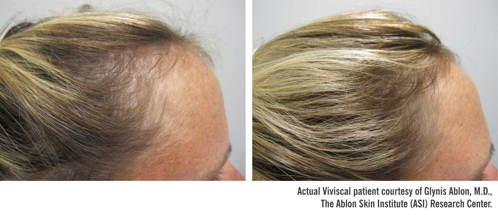Viviscal Professional Before And After Asarch Center