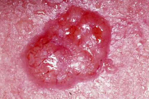 Basal Cell Carcinoma Englewood CO