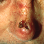 Squamous Cell Carcinoma Englewood CO