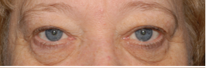 laser blepharoplasty before