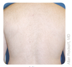laser hair removal after