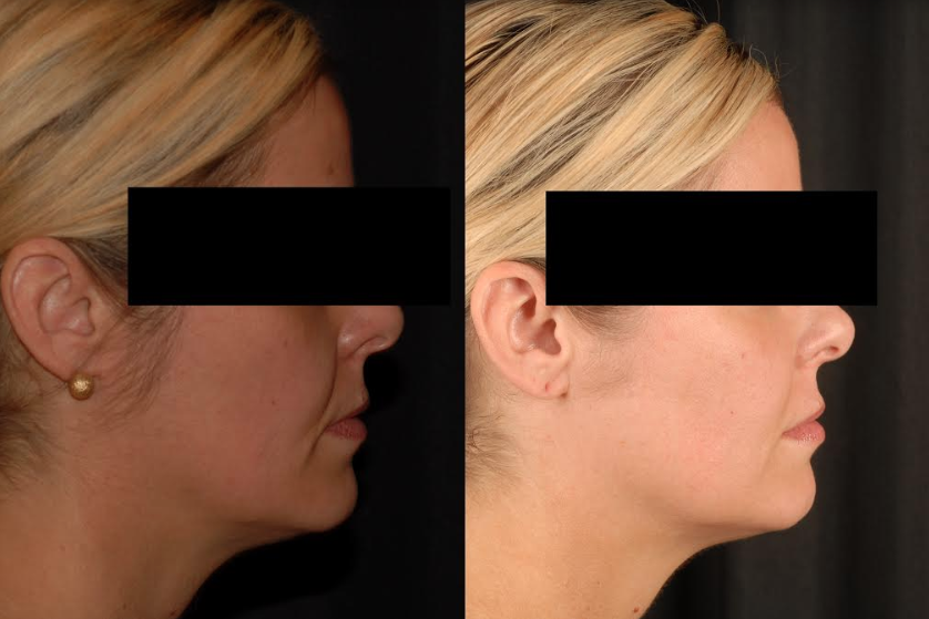 Juvederm Before & After Englewood CO