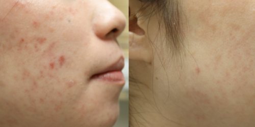 Acne Lift Treatment Englewood CO