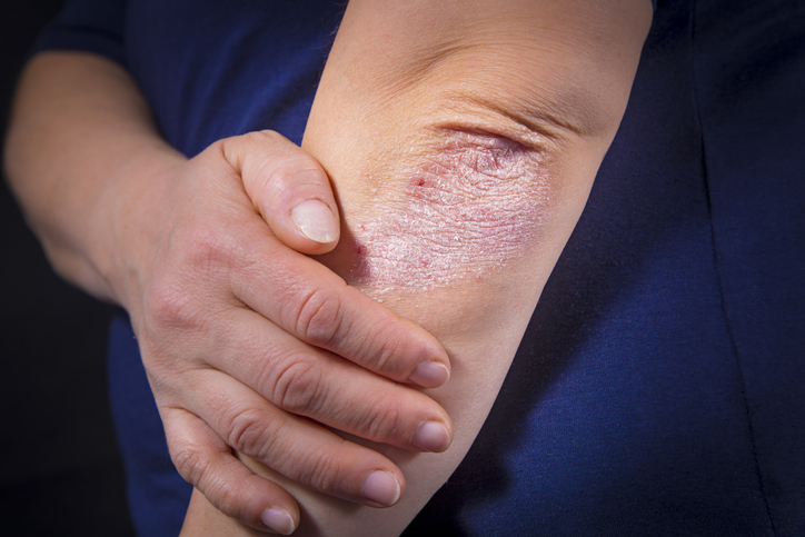 psoriasis | Englewood CO